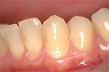 知覚過敏の歯