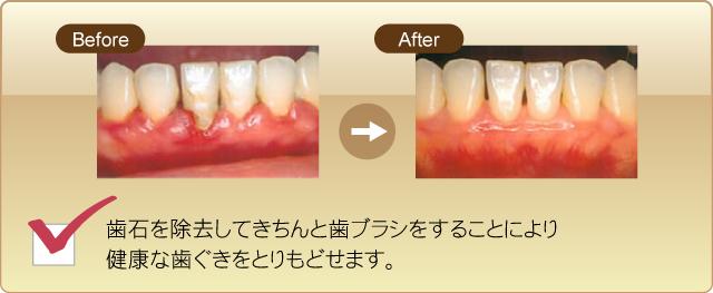 歯石を除去してきちんと歯ブラシをすることにより健康な歯茎をとりもどせます