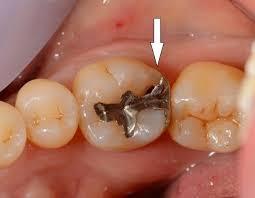 銀盤の下で虫歯になりやすい