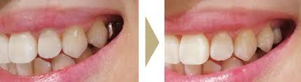 銀歯を自費治療のプラスチックで白くする方法