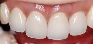 銀歯は歯茎を黒くなる可能性がある