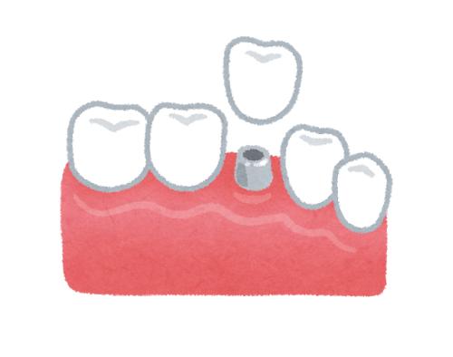 b治田歯科医院のインプラント
