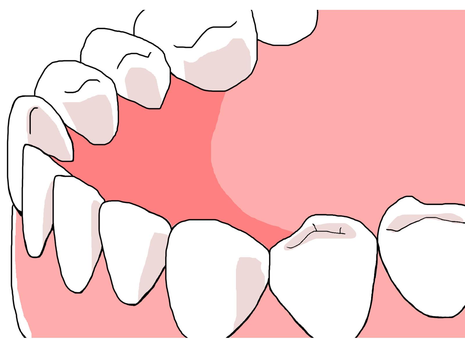歯の冷凍保存について